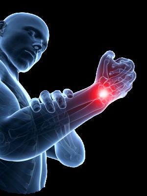 Upper limb orthoses